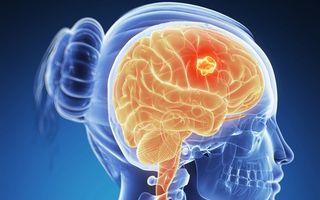 Cancer: 9 simptome provocate de tumorile cerebrale. Nu le ignora!