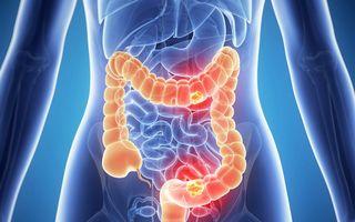 Cancer: Cele mai frecvente simptome care anunţă o tumoare la colon