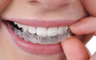 Invisalign - tratament ortodontic de ultima generaţie