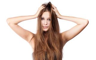 5 tratamente naturale care te scapă de mătreaţă