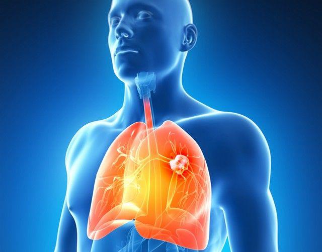 tratament pt cancerul de plamani)