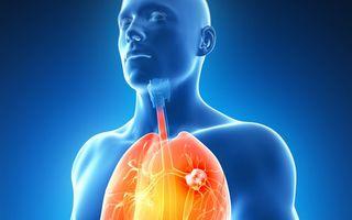 Cancerul pulmonar: 8 cele mai frecvente simptome de care trebuie să ţii seama