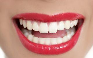 Expert stomatolog: Cele mai bune soluţii pentru albirea dinţilor