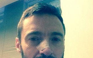 Cancerul de piele. Hugh Jackman, operat a doua oară. Ce sfat ne dă?