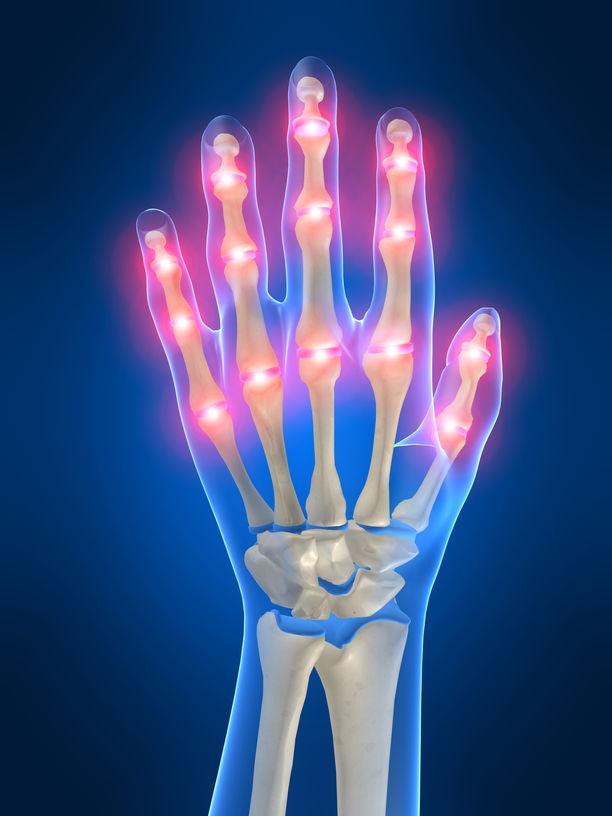 cum se tratează poliartrita tuturor articulațiilor durerea articulației genunchiului decât tratamentul