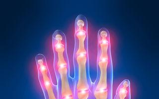 Poliartrita reumatoidă: Sfaturi esenţiale care te ajută să reduci durerea