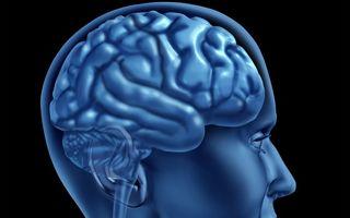 Atacul vascular cerebral: Top 5 întrebări şi răspunsurile expertului