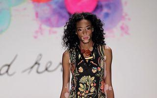 Dosar Eva. Triumful fetei bolnave de vitiligo care a devenit fotomodel