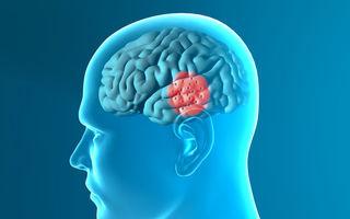 Sănătate: Primele simptome ale bolii Parkinson. Cum o recunoşti?
