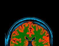Originea maladiei Parkinson, descoperită de cercetători