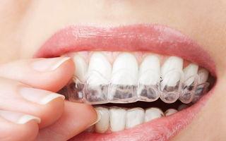 Sănătate. 4 motive pentru care scrâşneşti din dinţi