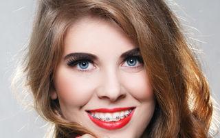Sănătate. 6 mituri despre aparatele dentare. Cât de mult te ajută?