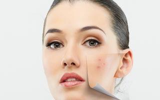 Frumuseţe. Cauzele pentru care îţi apar coşuri doar în anumite zone ale feţei. Cum le tratezi?