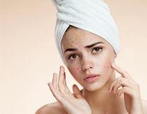 Frumuseţe. Cum să scapi de cicatricile cauzate de acnee? Sfaturile expertului