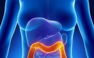 Sănătate. 6 semnale de alarmă pentru cancerul colorectal. Cum îl previi?