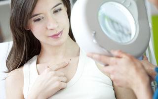 Sănătate. Când este cazul să verifici aluniţele la medic? 6 semnale de alarmă