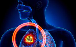 Cancerul pulmonar. 8 simptome pe care nu ar trebui să le ignori