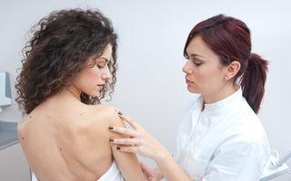 Sănătate. Greşeli care pot favoriza apariţia cancerului de piele