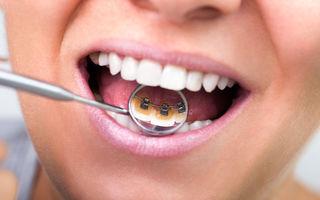 Semne care ar trebui să vă trimita de urgenţă la un control stomatologic