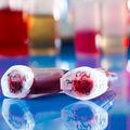 Transplantul cu celule stem, o șansă de supraviețuire pentru pacienții cu leucemie acută limfoblastică