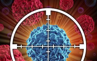 A fost descoperit anticorpul pentru cancer! Invenţie epocală