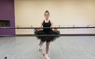 Impresionant: O fată fără un picior a devenit balerină!