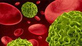 Primele semne de cancer: cum le recunoşti?