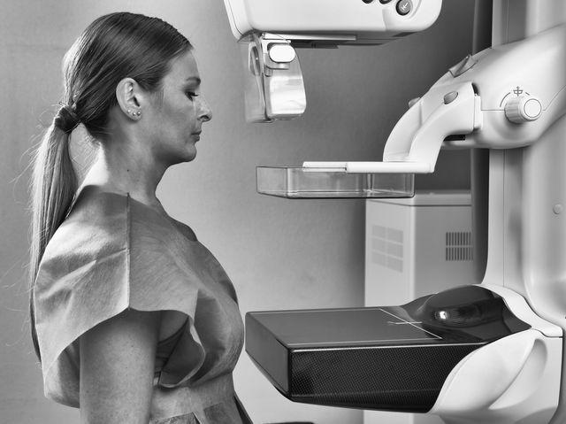 Control mamografie