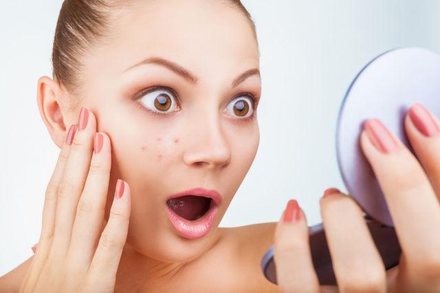 Probleme cu acneea