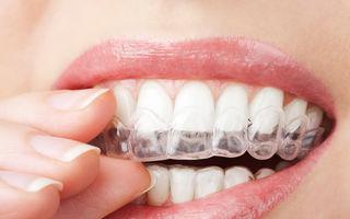 Albirea dinţilor acasă: ce metode funcţionează?