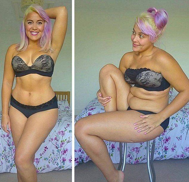 anorexică