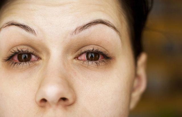 De ce se inrosesc ochii