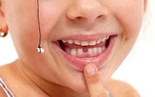 2 motive să păstrezi dinții de lapte