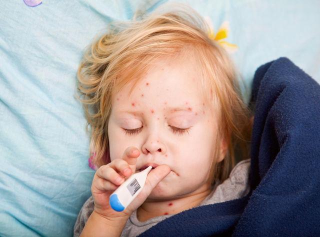 Tot Ce Trebuie Să știi Despre Rujeola La Copii Simptome și
