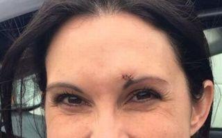 Respect pentru o alergătoare curajoasă: S-a luptat cu un agresor şi i-a spart capul - FOTO