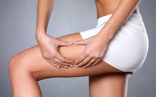 Cele mai eficiente tratamente care te scapă de celulită