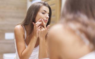 Ce spun specialiștii despre tratamentele anti-acnee