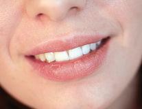 Cum să alegi cea mai bună metodă de albire a dinților?
