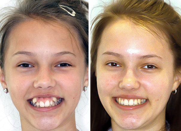 slabesti cu aparat dentar