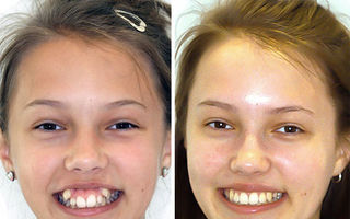 Aparatul dentar face minuni! Cum arată acum 30 de oameni care l-au purtat