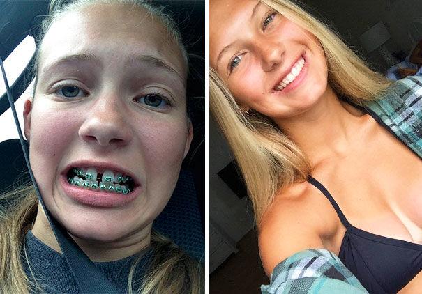 Aparatul dentar te ajută să slăbeşti. Ai citit bine!