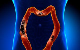 10 factori de risc care favorizează apariţia cancerului la colon
