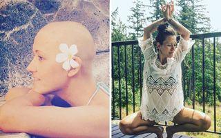 Atunci şi acum: 35 de imagini cu oameni care au învins cancerul