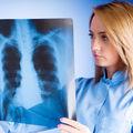 6 cauze ale cancerului la plămâni pentru nefumători