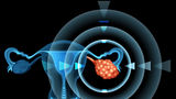 Semne ale cancerului ovarian pe care trebuie să le recunoști