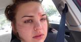 Avertismentul unei femei: a fost la un pas de moarte din cauza unei pensule de machiaj