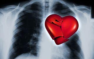 Ce este sindromul inimii frânte: O femeie a primit diagnosticul după ce i-a murit câinele