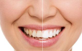 5 cauze pentru îngălbenirea dinților