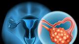 4 simptome timpurii ale cancerului ovarian pe care orice femeie trebuie să le știe