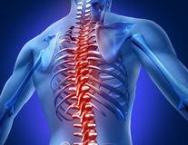 Cum se manifestă hernia de disc